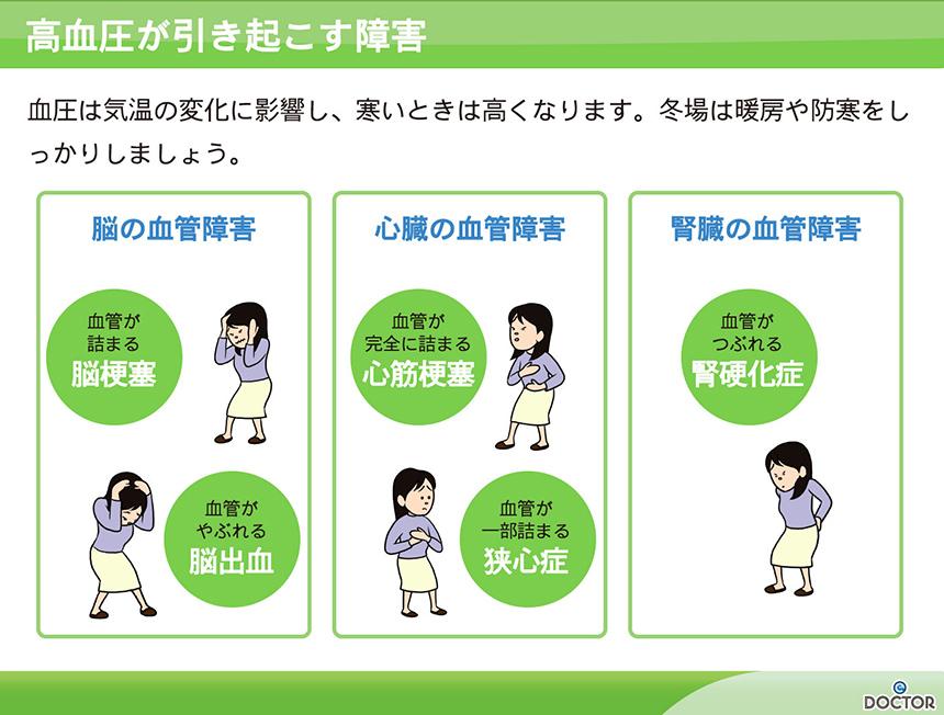 高血圧が引き起こす障害
