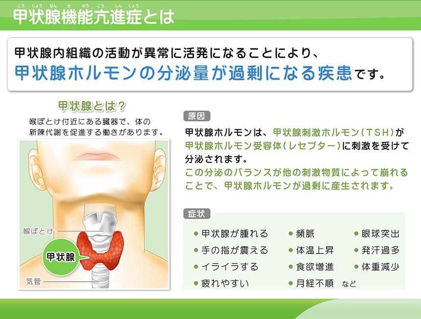 甲状腺機能亢進症とは